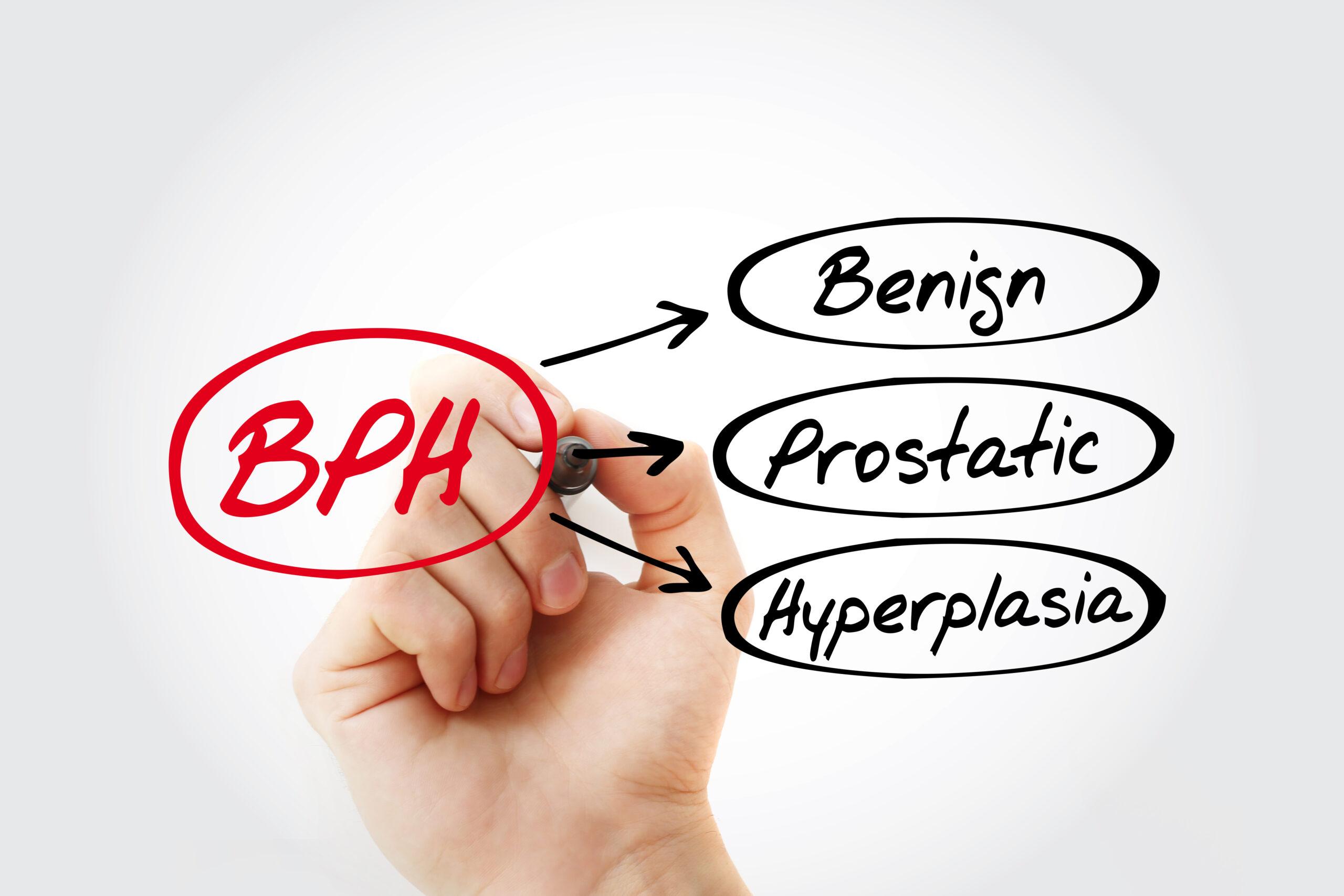 Benign Prostatic Hyperplasia: Everything You Need to Know